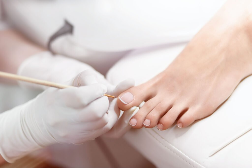 Close up of professional painting by white and glossy acrilyc paint nails on foot, Kay Blowes Podiatry, Podiatry clinic, podiatrist, foot specialist, foot clinic, Westbury, Warminster, Trowbridge